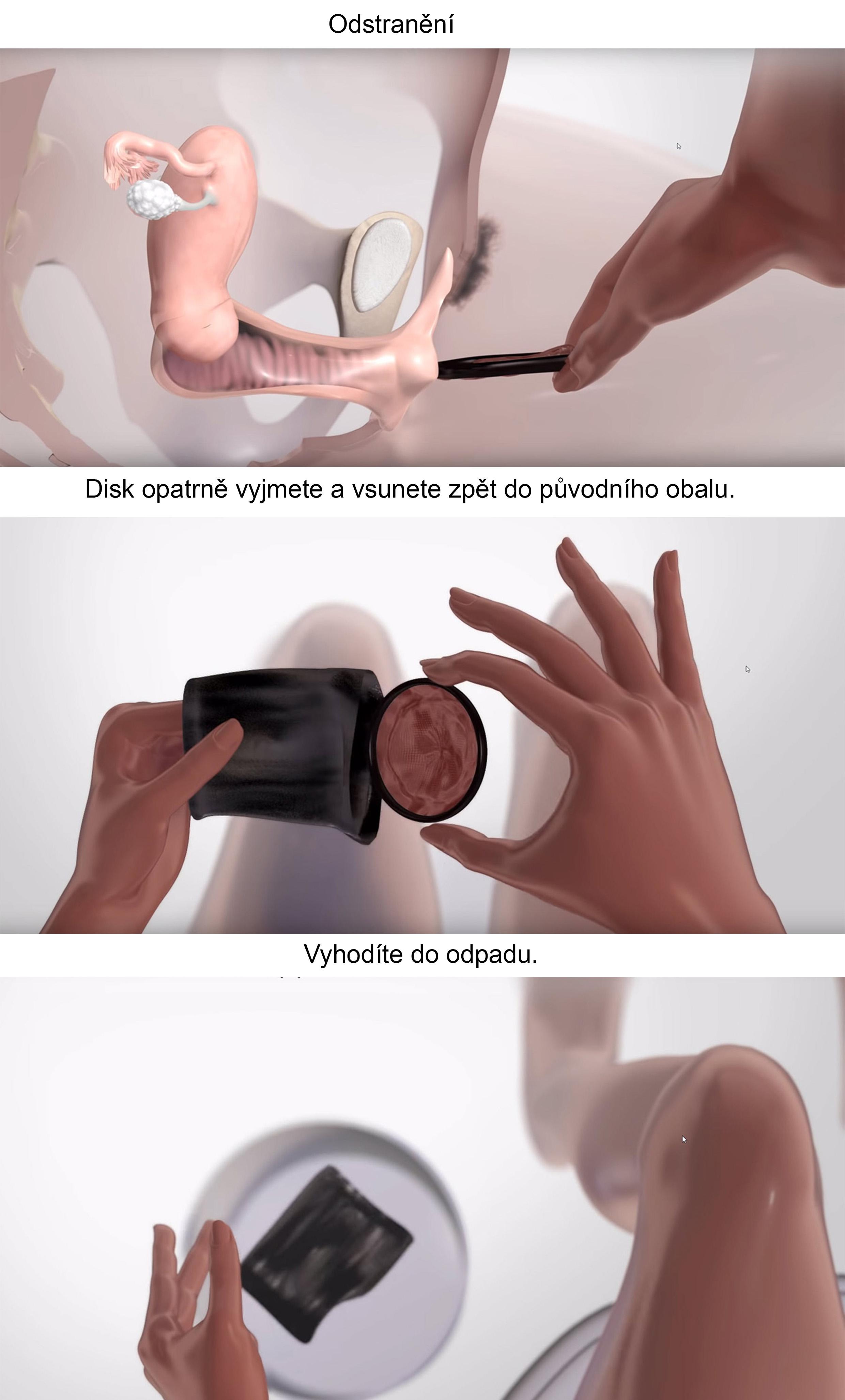 flex disk
