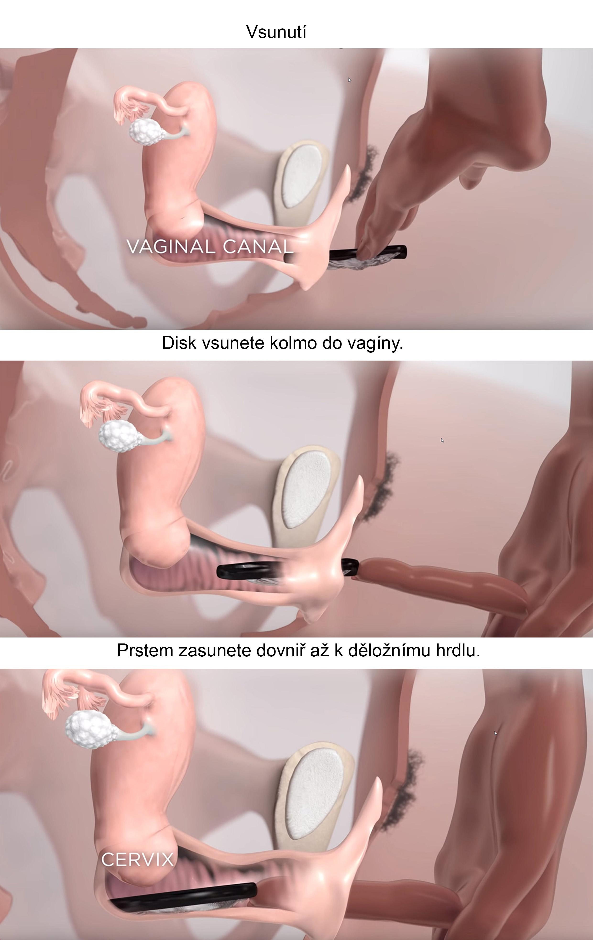 menstruační disk